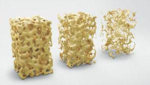 3 examples of high, medium and low bone density